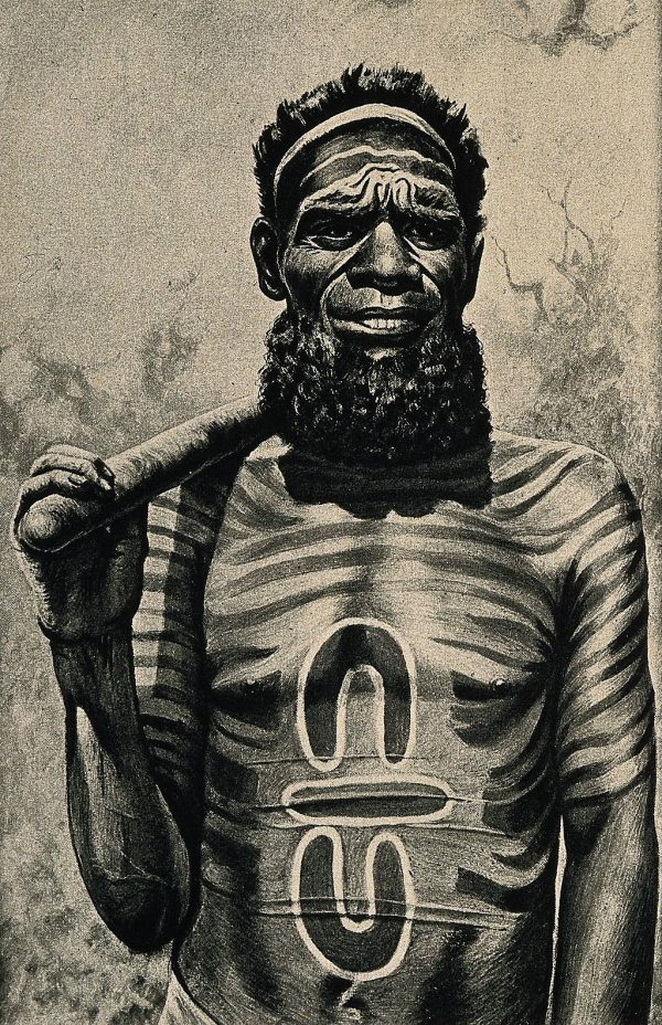 An Australian Aboriginal medicine man with a symbol on his chest that was also found at Göbekli Tepe. (Wellcome Images/CC BY)