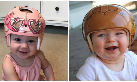 Babies that needed to wear a medical helmet faced rude comments and pitying looks—until you see what this artist does