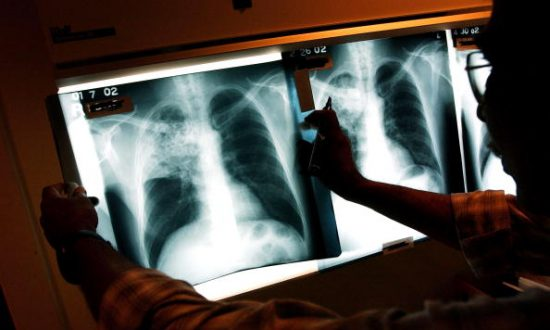 In China, Anxiety About High-Stakes Exam Fuels Spread of Tuberculosis at School