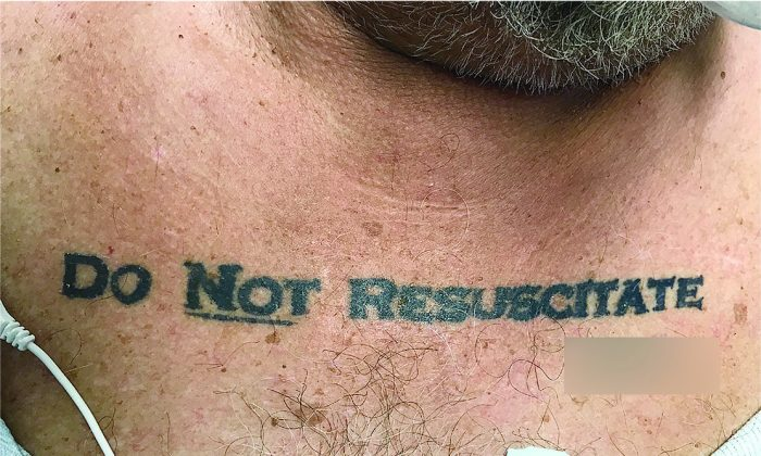 """Doctors faced an ethical dilemma when they discovered a dying man with """"do not resuscitate"""" tattooed on his chest. (The New England Journal of Medicine ©2017)"""