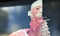 Truckloads of Real Human Corpses and Body Parts On Display in Sydney