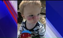 Mother Says Toddler Suffered Chemical Burns from Aerosol Sunscreen