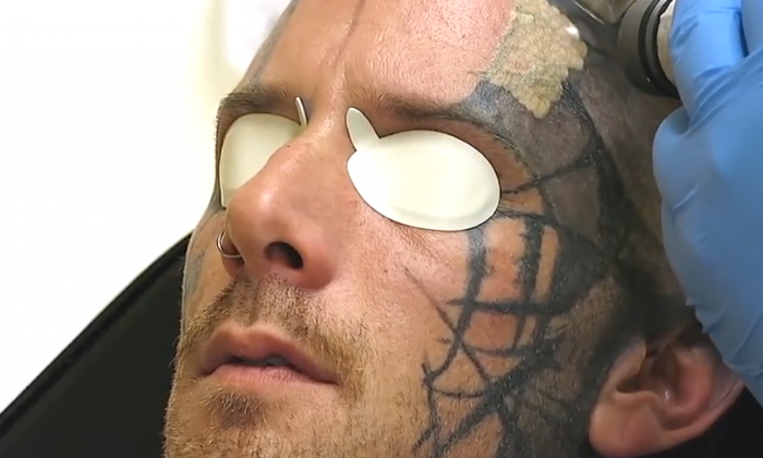 Man gets massive face tattoo removed with a fascinating process