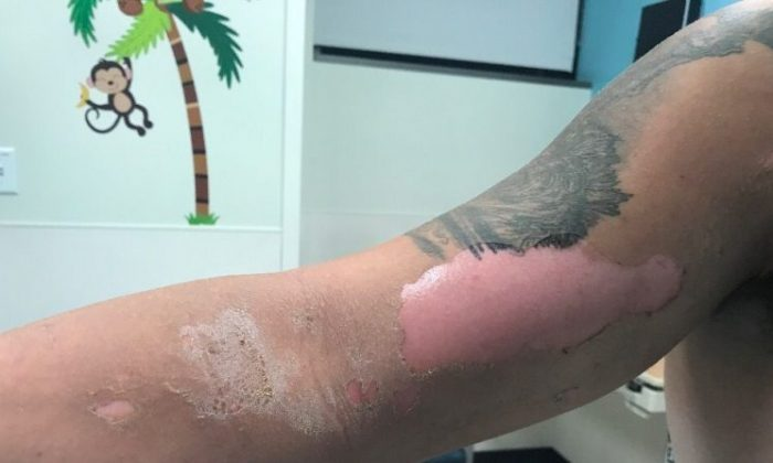 Alex Childress's arm after contact with sap from a hogweed plant on July 10, 2018. (GoFundMe)