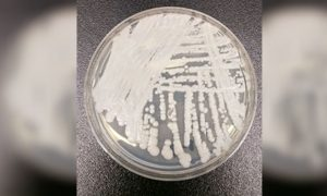 Health Authorities on High Alert After Rare Superbug Found in Australia