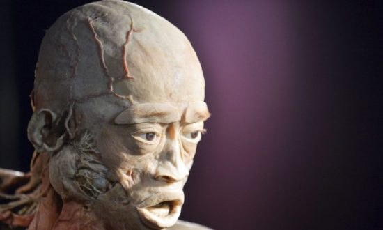 Critic of Human Cadaver Exhibition Aims to Pioneer Tests on Plastinated Tissue