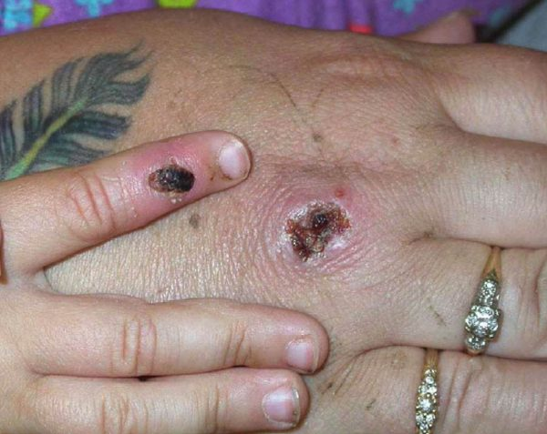 Monkeypox lesions shown on a patient's hand