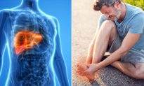 6 Dangerous Symptoms That Indicate Your Liver Might be Loaded With Toxins