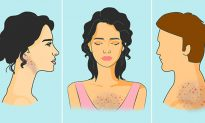 9 things that cause acne on different parts of the body—and how to improve your health!