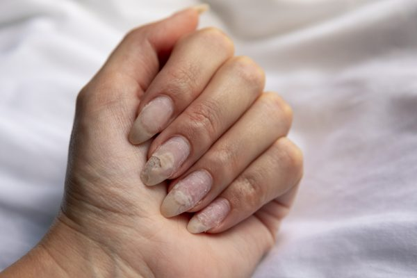 What Your Fingernails Can Tell You About Your Health, According to ...