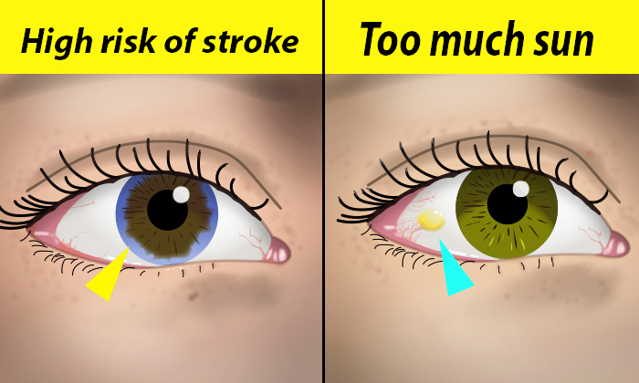 10 Things Your Eyes Say About Your Health—Are Your Pupils Both Different Sizes?