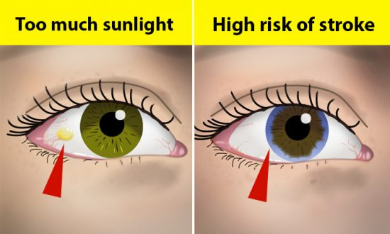 10 Things Your Eyes Say About Your Health—If You See This Ring Around Your Iris, Watch Out