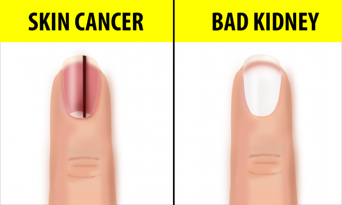 10 Fingernail Symptoms That Can Help Detect Health Conditions—If You ...