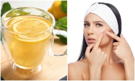 Lemon water helps many health issues including acne. (New Africa/Shutterstock)