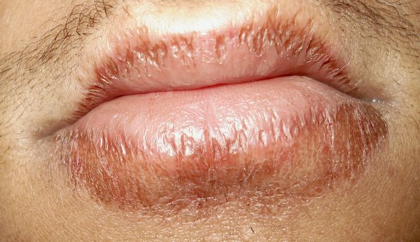 Dix choses que vos lèvres disent au sujet de votre santé ...
