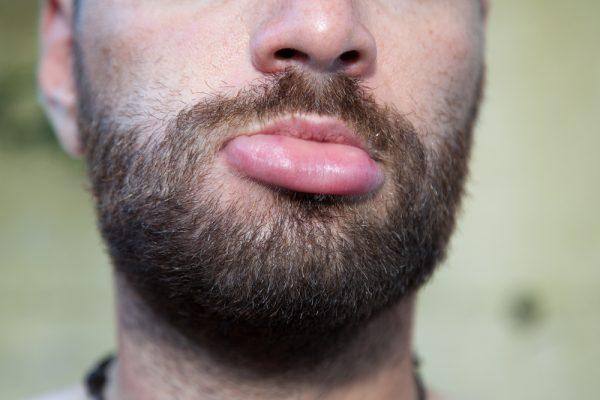 Dix Choses Que Vos Lèvres Disent Au Sujet De Votre Santé