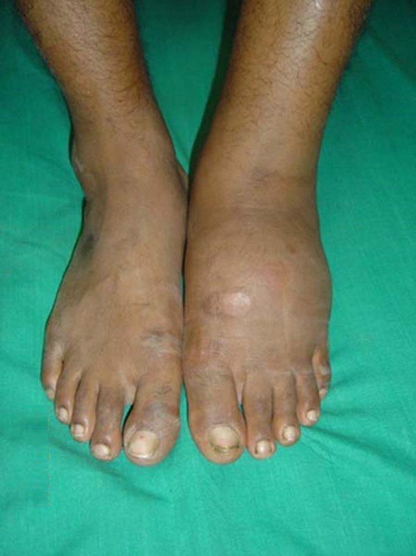 Charcot's foot