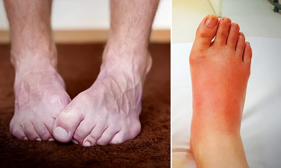 10 Things Your Feet Reveal About Your Health–Are Your Feet Cold All The Time?