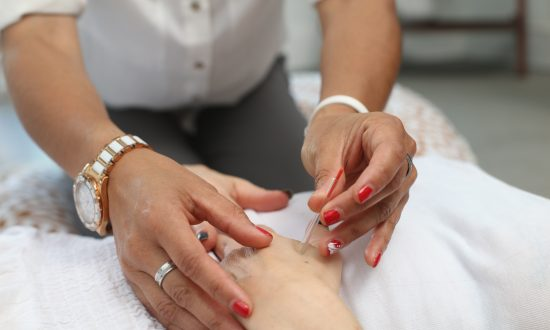 Acupuncture Heals Back Pain, Joint Pain and More