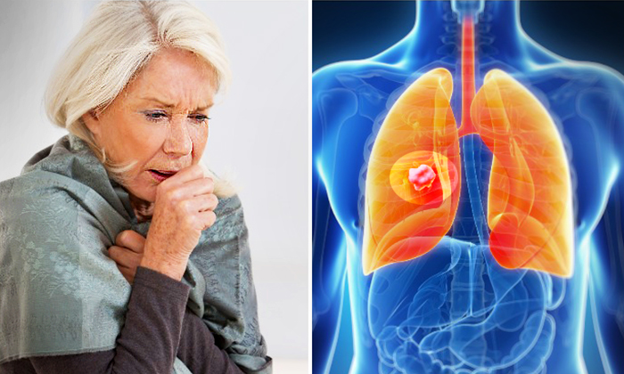 9 Warning Signs of Lung Cancer To Watch For—Are You Constantly Catching Your Breath?