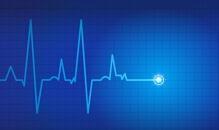 Sudden Cardiac Deaths in Young People
