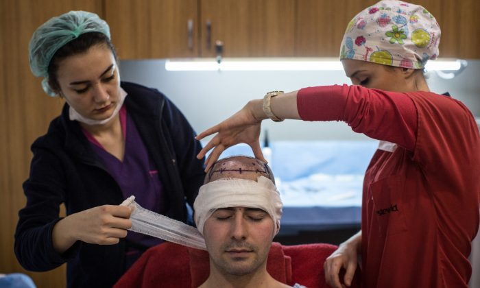 A patient undergoes a hair transplant procedure at the luxury Esteworld Clinic on Feb. 15, 2017, in Istanbul, Turkey. (Chris McGrath/Getty Images)