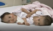 Conjoined Twin Sisters from Bhutan Successfully Separated, but Can't Stop Snuggling
