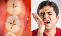 7 Keys to Avoiding Tooth Decay, Dentists Reveal–It's Not as Simple as Just Brushing