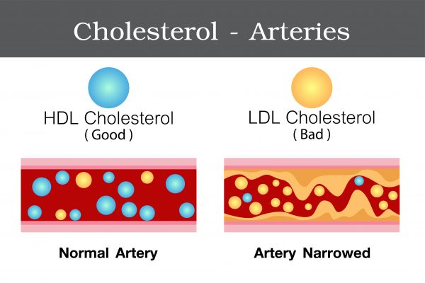 Watch Your Cholesterol prevent stroke