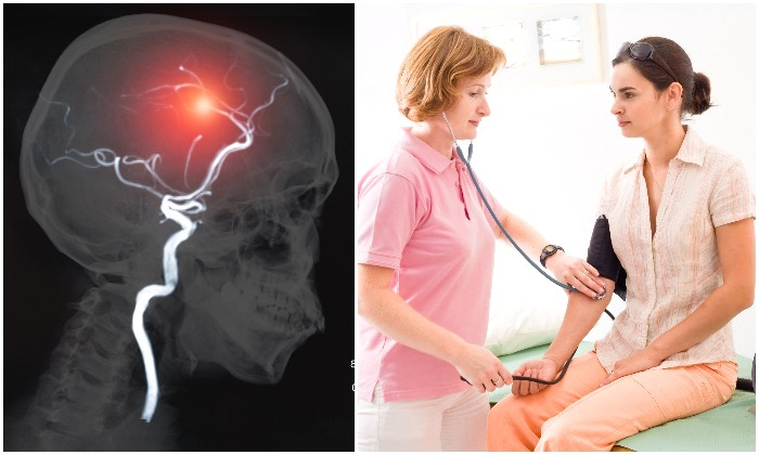 10 Ways to Prevent Stroke–Things You Can Do That May Save Your Life