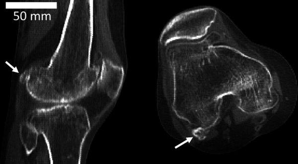 Mystery knee bone makes evolutionary comeback