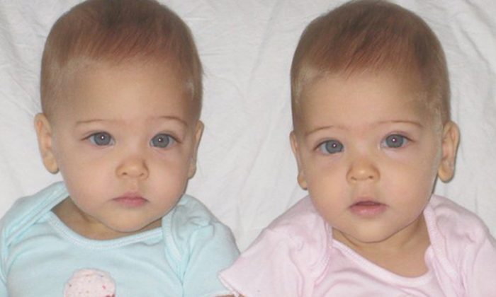 'The Most Beautiful' Twins Born In 2010 Became Overnight Stars, Here's How They Look Now