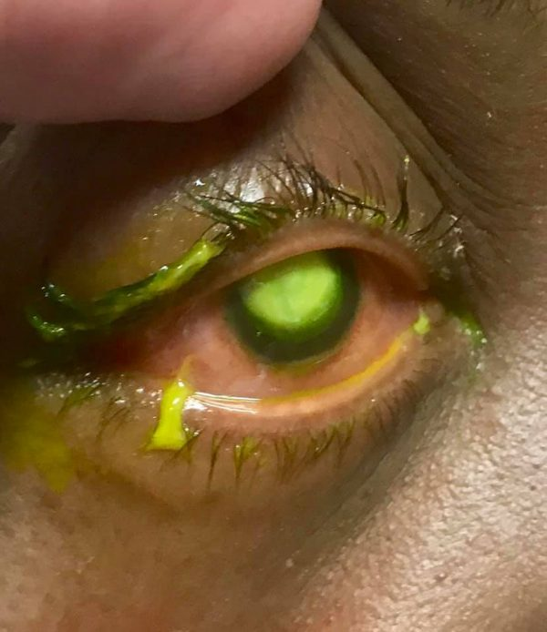 Doctor shares graphic pics to warn against sleeping in contacts