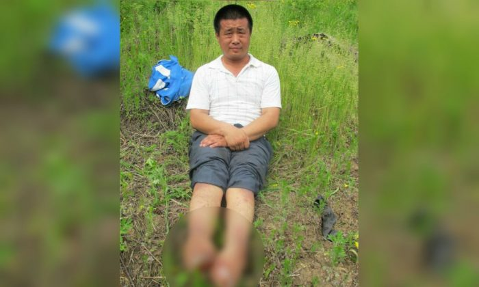 Man Who Lost Both Feet From Police-Inflicted Torture Dies
