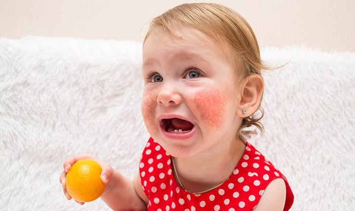 No Enigma: Vaccines and the Food Allergy Epidemic