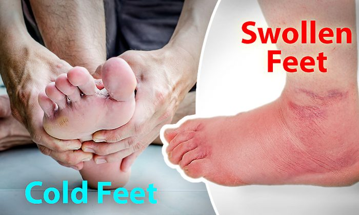 5 Ways You Can Spot Health Issues Just by Looking at Your Feet–Cold Feet Can Mean Nerve Damage