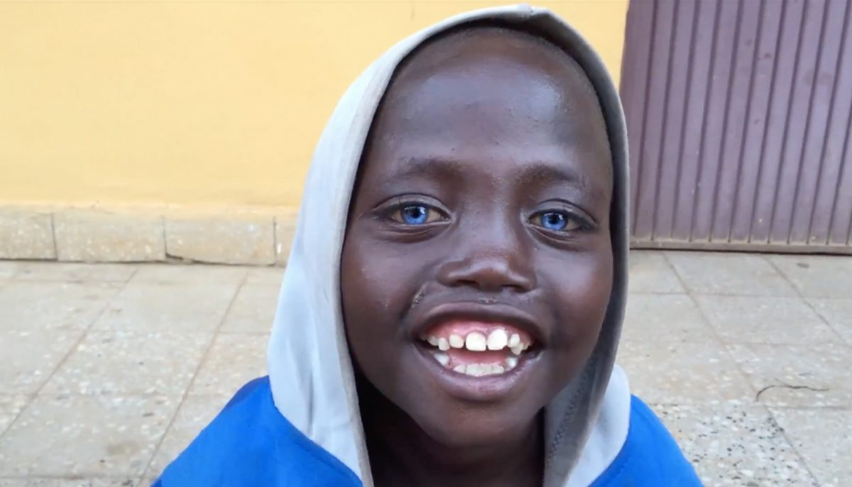 Meet the Ethiopian Boy Whose Rare Startling Blue Eyes Make Him Absolutely Unique