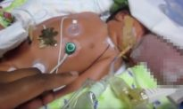 Doctors Told Parents to Abort Baby Boy Born With Brain Outside Skull, but He Survived